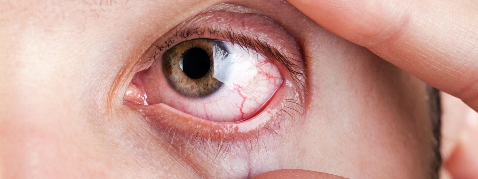 Vista cansada: quais os sinais e como se pode evitar